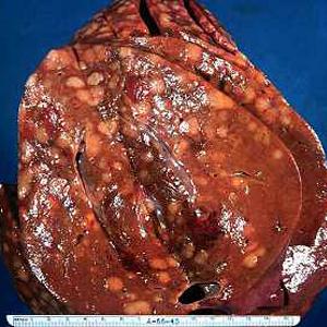 Cara Pengobatan Alami Kanker Hati Dengan Jelly Gamat ...