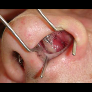 Obat Polip Hidung Ampuh