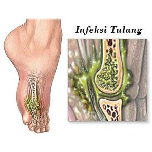 Obat Infeksi Tulang