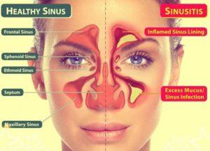 pengertian sinusitis