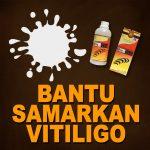 Menyamarkan Vitiligo Dengan Jelly Gamat
